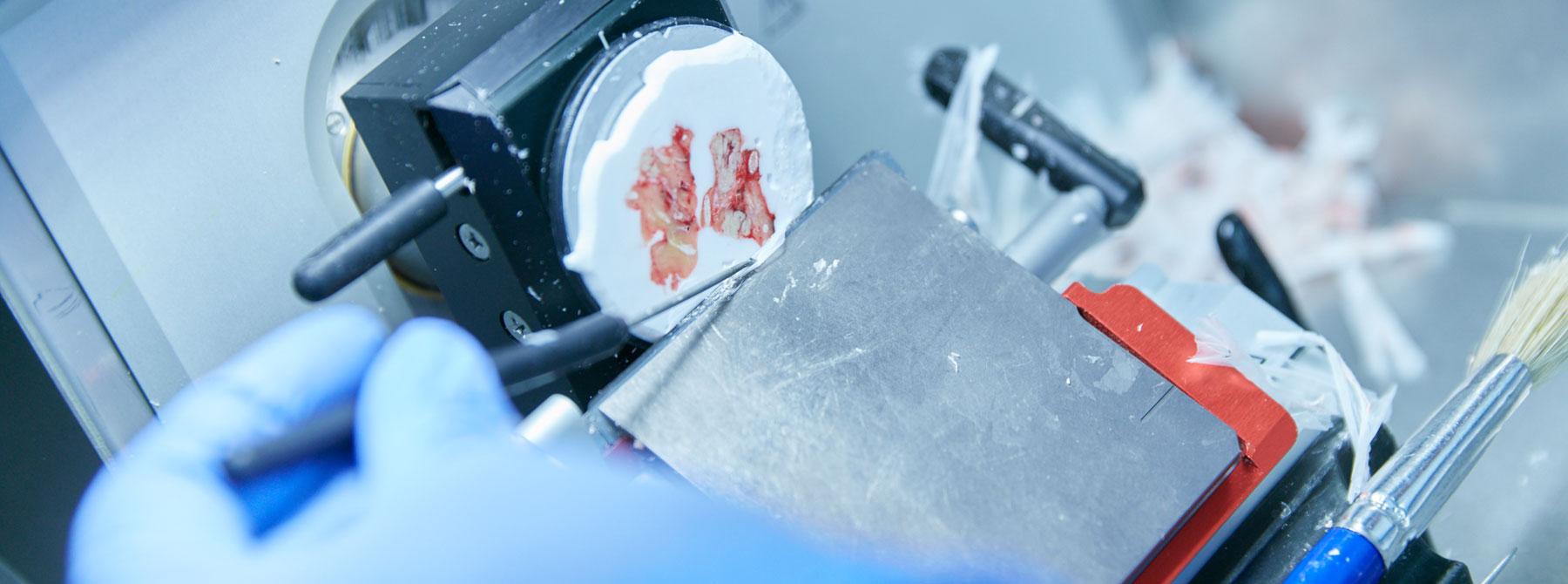 Schnellschnitte erfolgen an nativem, nicht eingebetteten Material. Im Schnellschnittlabor wird die Gewebeprobe zunächst vom Pathologen zugeschnitten und anschließend von MTAs histotechnisch präpariert (Auffrieren der Probe und Schneiden am Kryostaten, Aufziehen der Schnitte auf Objektträger und Schnellfärbung.